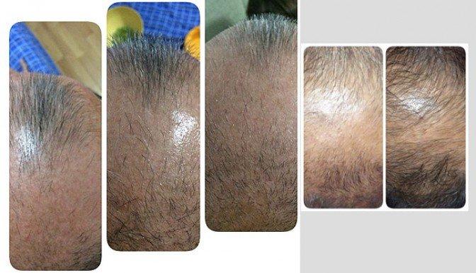 Nanoteknoloji ile saç dökülmesine çözüm!