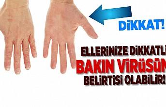 Dikkat! Ellerinize iyi bakın virüsün belirtisi olabilir!