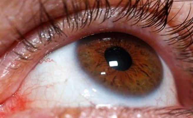 Gözünüz birçok hastalığı ele veriyor!