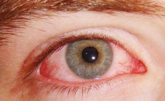 Göz Enfeksiyonu Salgını