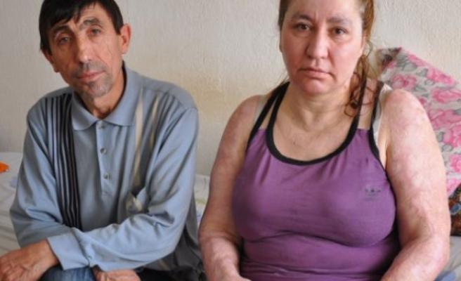 Trafik kazasında yanan kadın eşinin desteği ile hayata tutundu!
