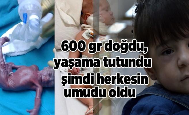 600 doğdu ama yaşama tutundu