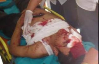 Kavgada 2 kardeş yaralandı