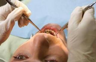Diş tedavisinde özele sevk kaldırıldı