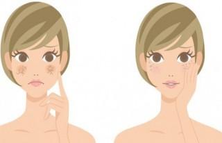 Sağlıklı bir cilde sahip olmanın ipuçları!