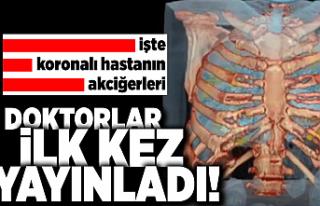 İşte koronalı hastanın akciğeri! Doktorlar ilk...