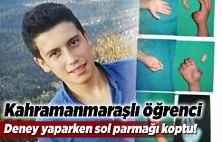 Kahramanmaraşlı öğrenci, parmaklarını kaybetti!