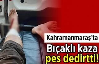Kahramanmaraş'ta bıçaklı kaza pes dedirtti!