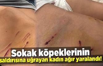 Sokak köpeklerinin saldırısına uğrayan kadın ağır yaralandı!