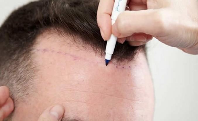 Saç Ekimi Öncesi ve Sonrası Dikkat Edilmesi Gerekenler